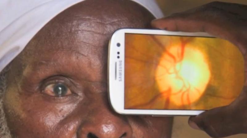 Portable Eye Examination Kit (PEEK)