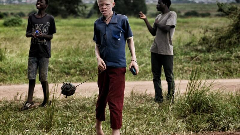 copil cu albinism din Malawi