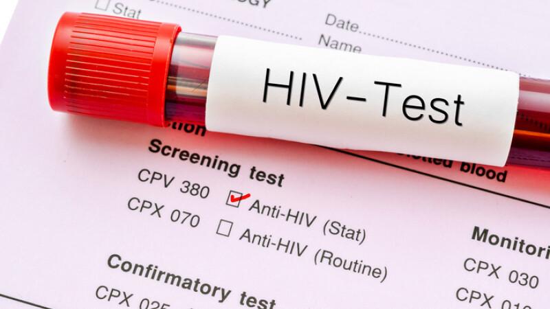 Al doilea om din lume care scapă de virusul HIV. Anunțul unei echipe de cercetători
