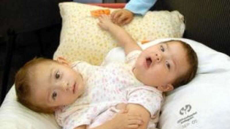 O tânără din Arizona a născut doi siamezi uniţi în zona pieptului