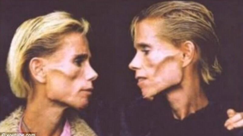 Clare si Rachel Wallmeyer - 1