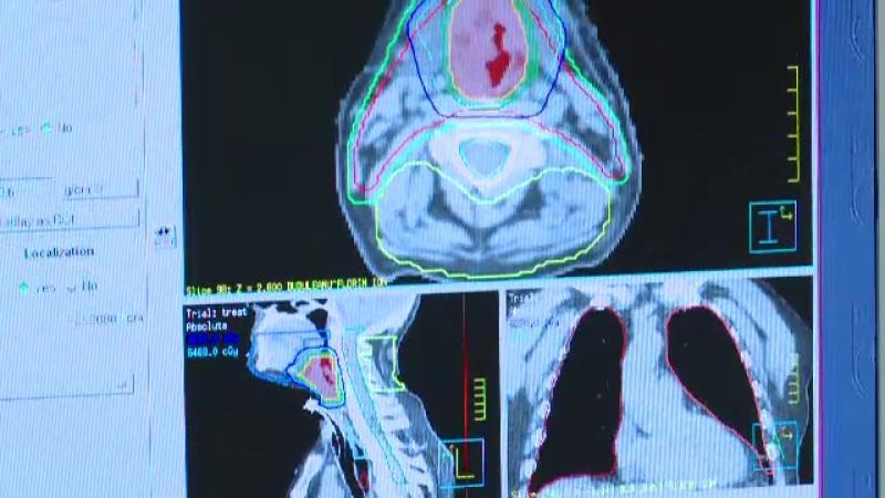Protocolul prin care ar trebui tratat corect cancerul si care sporeste sansele la viata. In Romania, este respectat rar