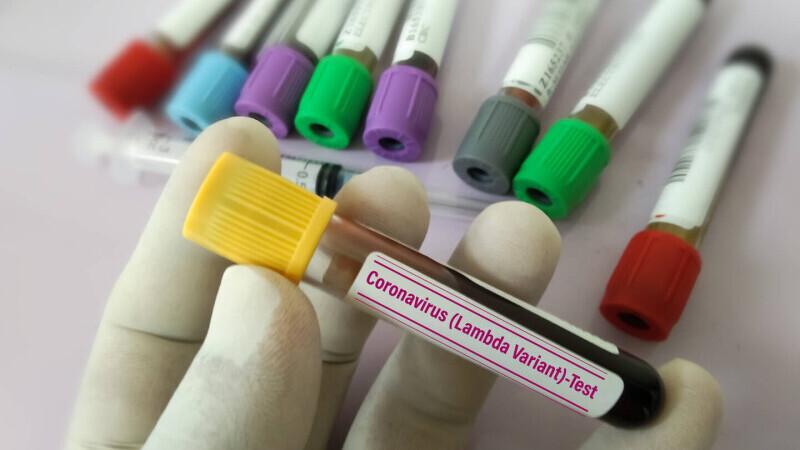 Coronavirus România, bilanț 31 august. Ultimele raportări cu privire la evoluția infectărilor