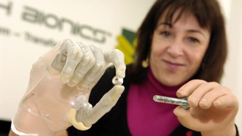 Deget bionic