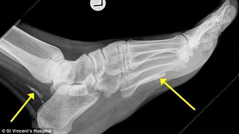 A mers la medic din cauza unei dureri la picior. A descoperit ca traia cu el in organism de 4 ani fara sa fi banuit ceva