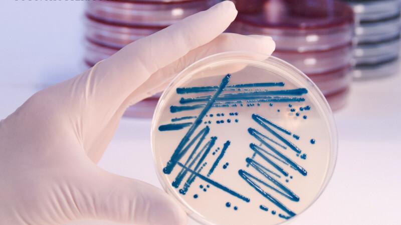 bacterii pe un vas petri
