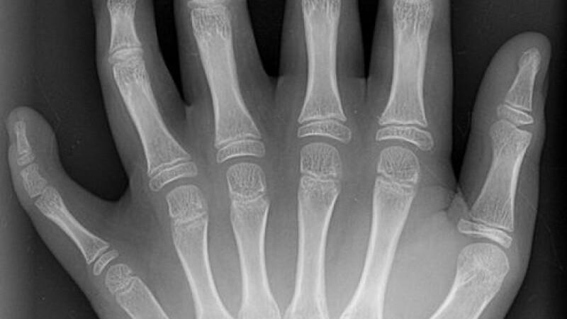 S-a nascut cu 12 degete la maini si 12 la picioare!