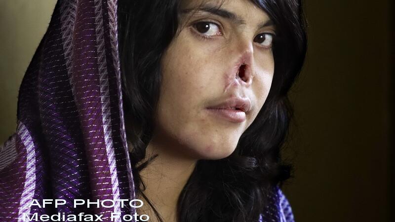 Fata afgana fara nas si fara urechi, mutilata de talibani