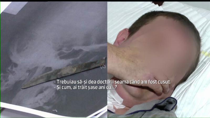 De 6 ani traia la cativa centimetri de moarte. Radiografia unui barbat din Iasi i-a uimit pe medici