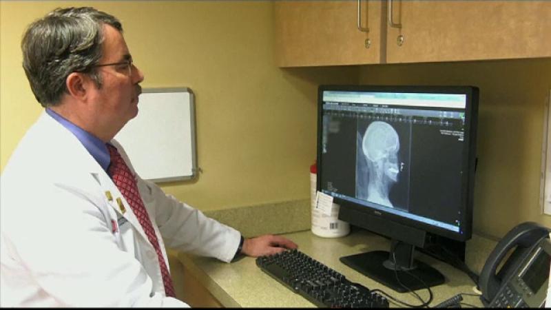 Nouă speranță pentru pacienții care suferă de Alzheimer: stimularea electrică a creierului