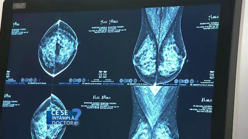 Riscurile pe care le ascunde un sân dens. Medicii recomandă ecografie anual