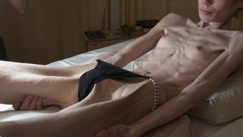 Anorexice