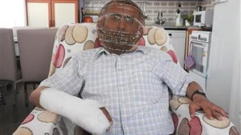 Omul cu masca de fier. Motivul bizar pentru care un barbat si-a inchis capul intr-o \
