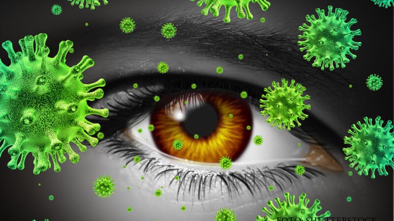 ochi, bacterii, alergii, conjuctivita