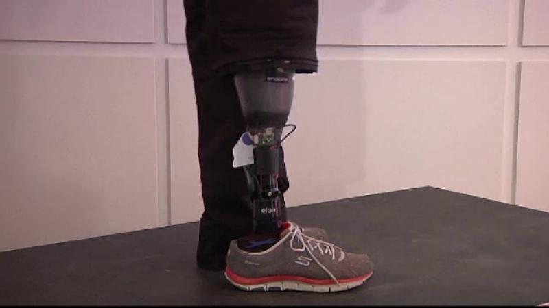 proteza picior