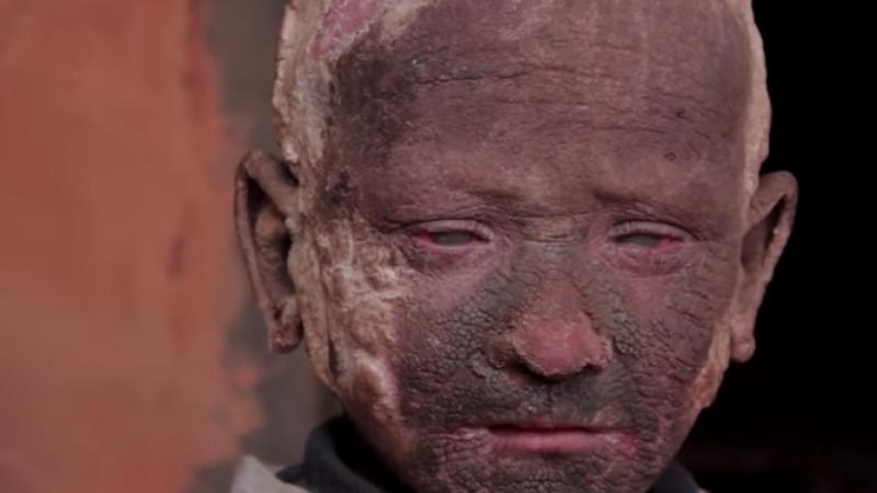 boala piele