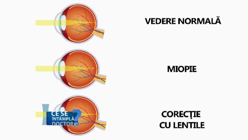 csid ochi