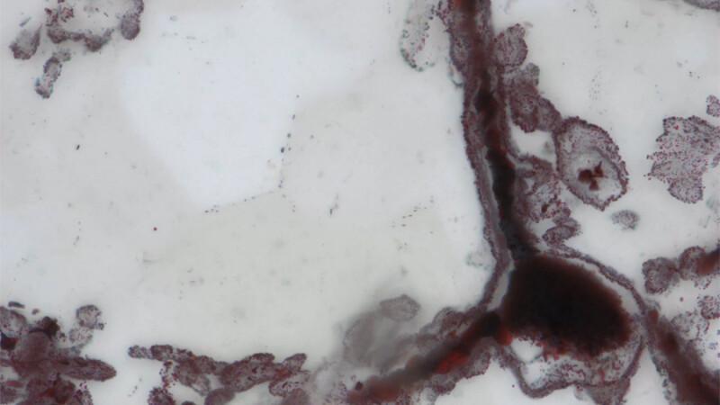bacterii canada