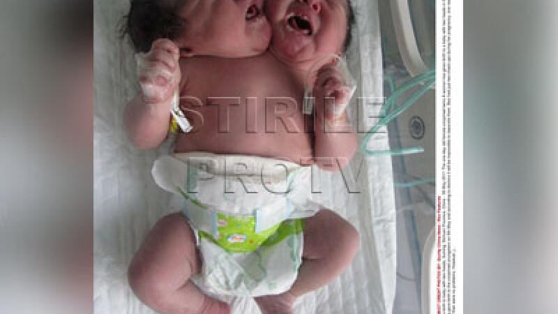 fetita cu doua capete