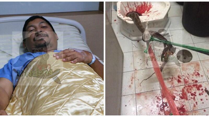 Teroare in baia unui barbat. Ce l-a muscat de organul genital atunci cand s-a asezat pe toaleta. FOTO