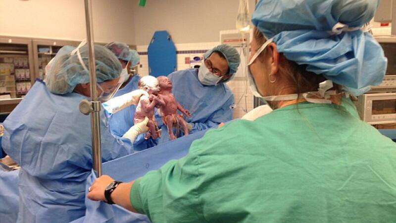 S-au nascut tinandu-se de mana si nu s-au despartit nici dupa 6 luni de viata. Povestea unica a unor fetite gemene