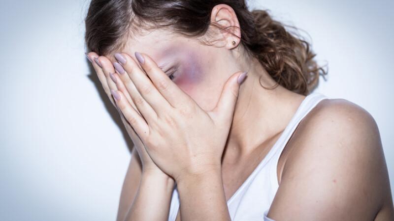 Româncă înjurată şi bătută în plină stradă, în Italia. De ce nu face poliţia nimic
