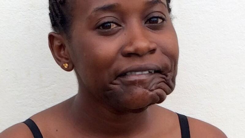 Transformarea unei adolescente din Congo, operata de o tumoare, de marimea unei mingi de fotbal, care i-a crescut pe fata