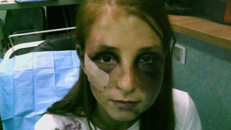 Barbatul care si-a batut iubita timp de 22 de ore, trimis in judecata. Femeia are nevoie de 16.000 de fire de par