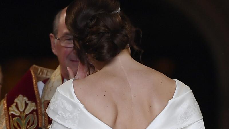 printesa Eugenie, cicatrice, nunta, rochie de mireasa,