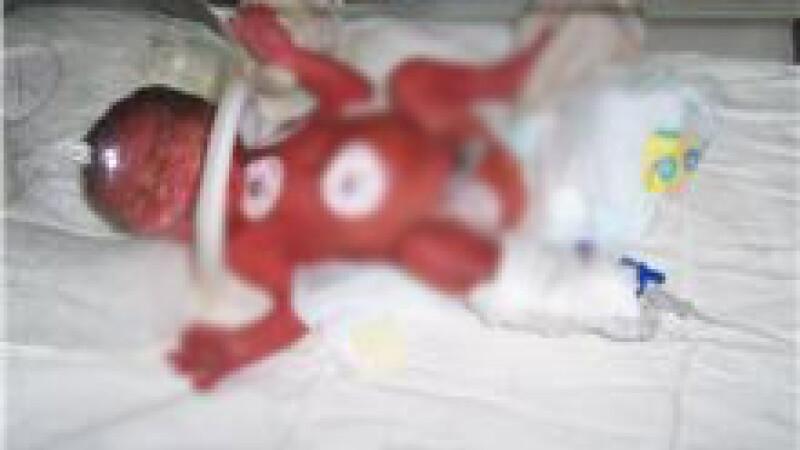 Imagini cu bebelusii raniti la Maternitatea Giulesti