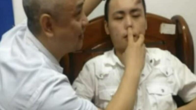 Medicii chinezi i-au crescut unui pacient un nas nou pe frunte