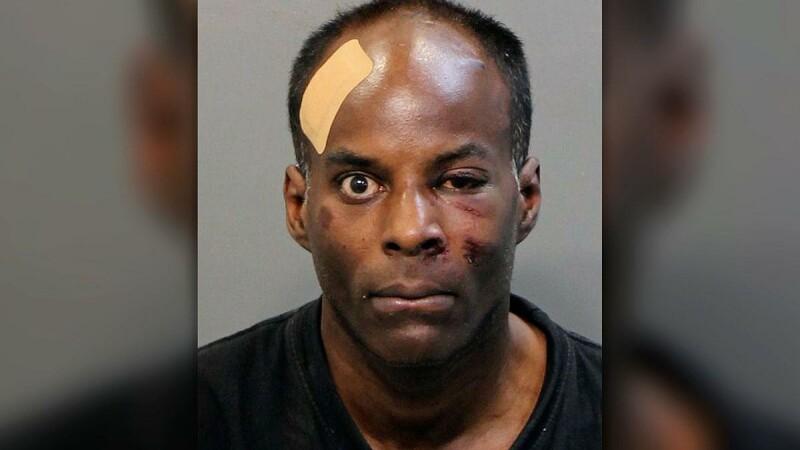 Atac înfiorător în SUA. Un bărbat i-a scos ochii cu mâinile goale partenerei sale