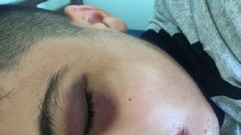 Un elev a fost operat la maxilar după ce a fost lovit de un coleg, într-un liceu din Craiova