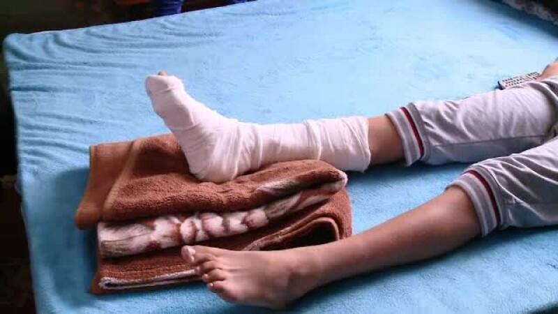 Un elev de 13 ani și-a fracturat piciorul în timpul orei de sport și nimeni nu si-a dat seama