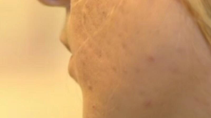 Cum pot fi evitate cicatricele provocate de acnee