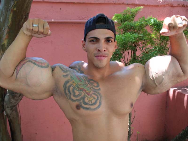 Brazilianul dependent de injectii cu ulei, poreclit Incredibilul Hulk, isi spune povestea
