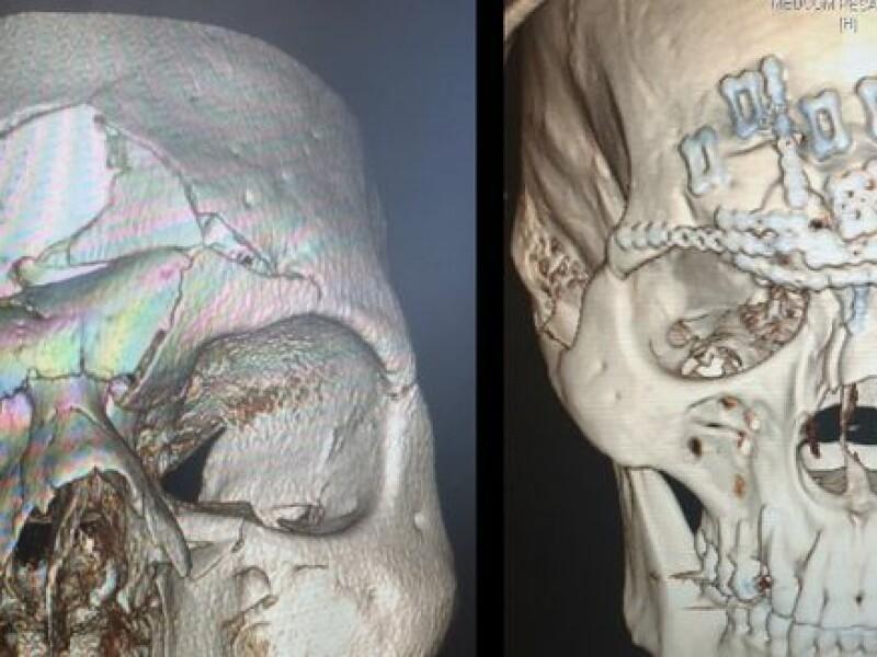 Soldat Universal. Luptatorul care s-a ales cu craniul fracturat in cusca de MMA a fost operat. Cum arata acum