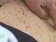 Primele semne ale cancerului de piele. Cum poate fi depistat la timp