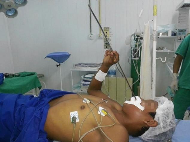 Un pescar a ajuns la spital cu o sageata infipta in cap, dupa ce a fost confundat cu un peste