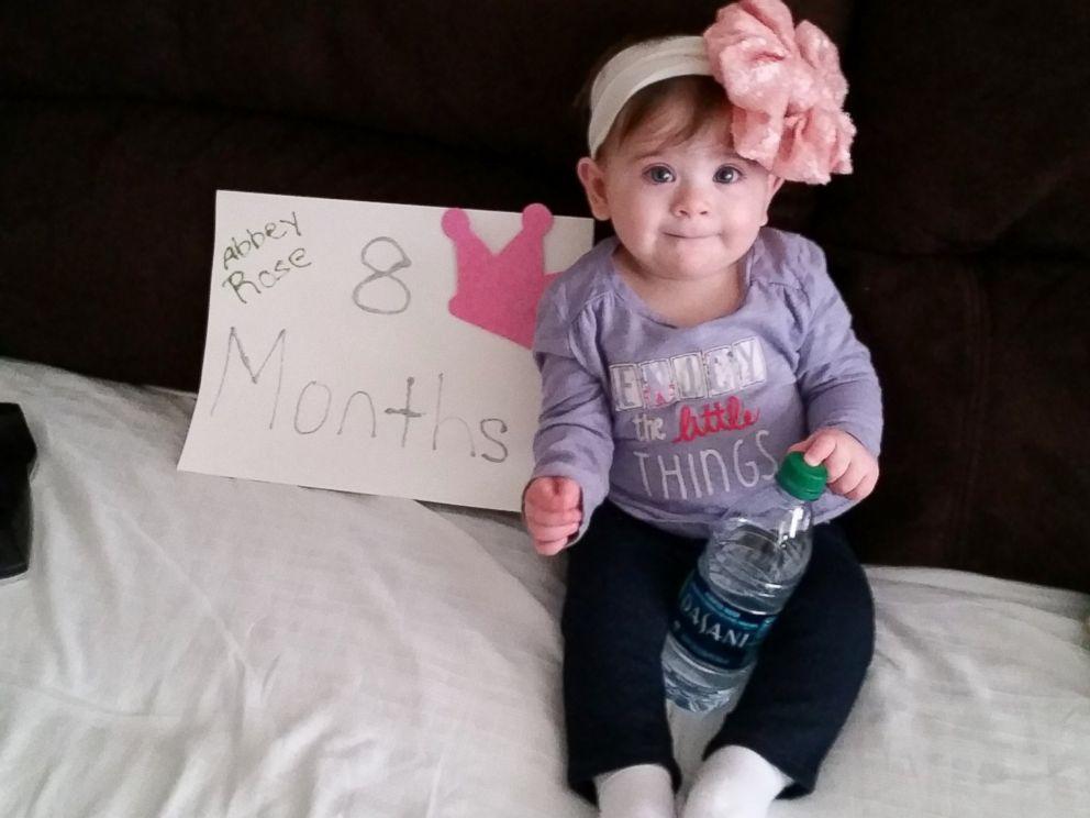 S-a nascut cu o tumoare imensa si medicii nu ii dadeau multe sanse de supravietuire. Povestea fetitei care a invins