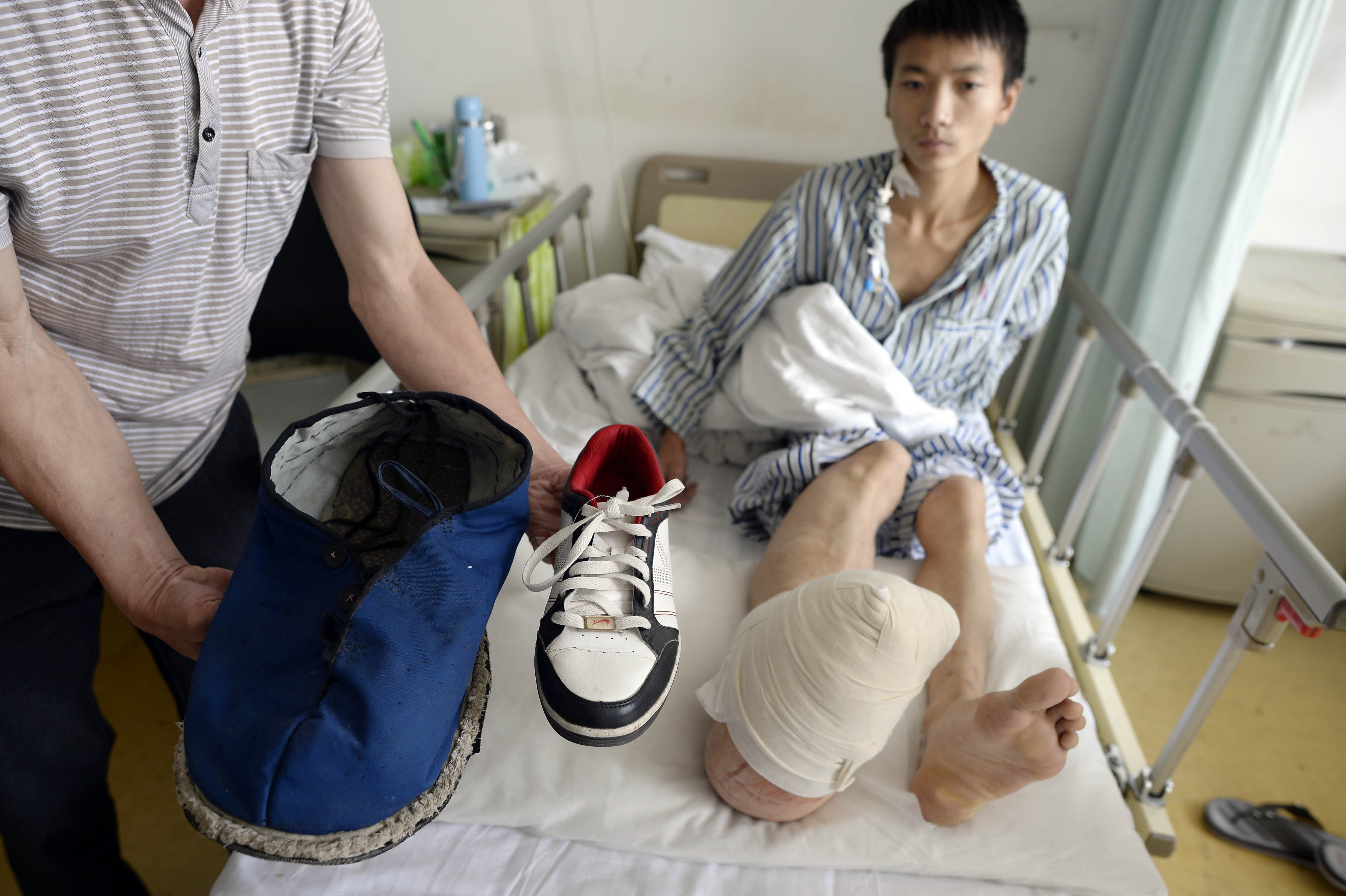 Drama unui tanar chinez care sufera de gigantism local. Liu are un picior urias, dar spera sa poata juca baschet. FOTO