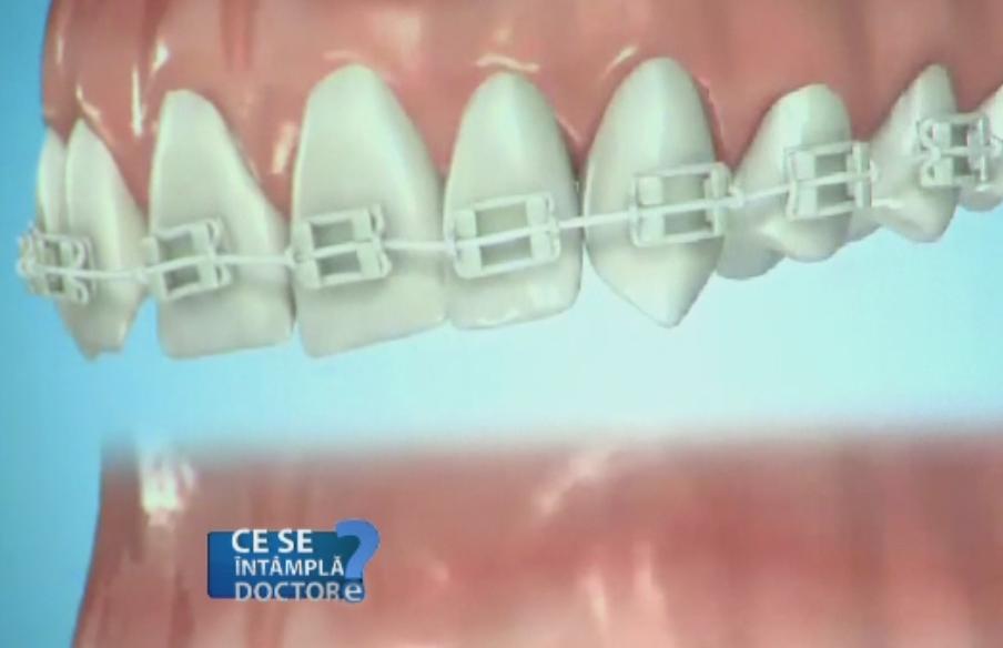 Dintii corect aliniati va scutesc de carii si parodontoza. Cele trei conditii esentiale care mentin dantura sanatoasa