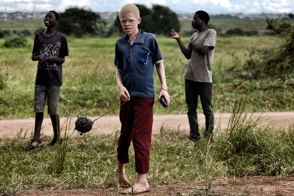 Albinos ucis în Malawi pentru un ritual magic. Poliţia i-ar fi ajutat pe criminali