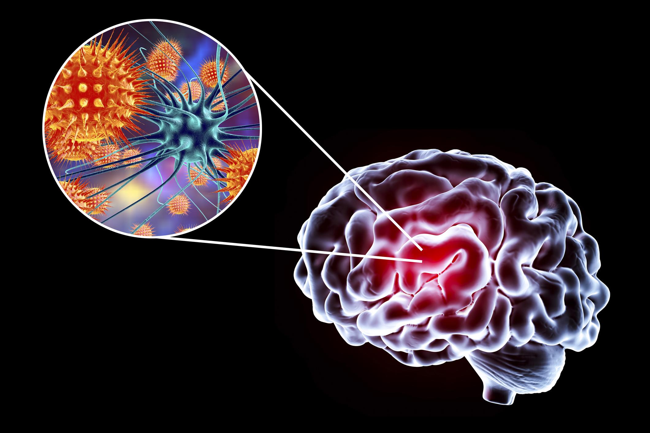 Trei cazuri de meningita menigococica în mai puţin de o săptămână. Ce spun autorităţile