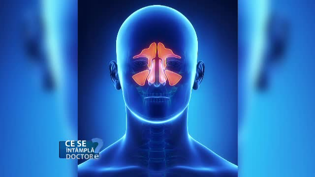 Sinus lift, procedura prin care osul maxilarului se recompune din interior