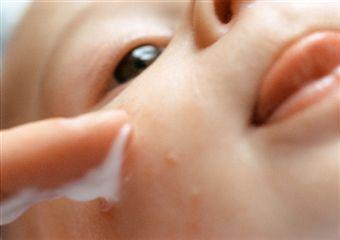 Septembrie, sub semnul epidemiei de astm. Cum ne protejăm copilul de acarienii din şcoală