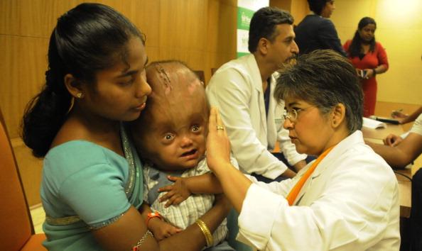 Roona Begum, fetita a carei poveste a facut inconjurul lumii, a iesit din spital dupa 4 luni