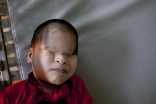Generatia Agentului Orange. Copiii vietnamezi, la 40 de ani de la razboi: portrete tulburatoare