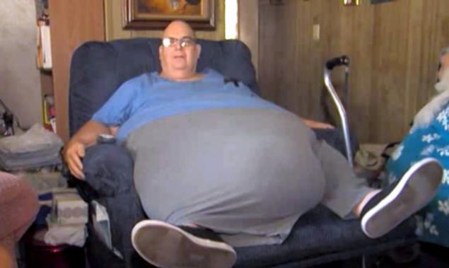 A trait un deceniu cu o tumora de 90 de kg in abdomen.