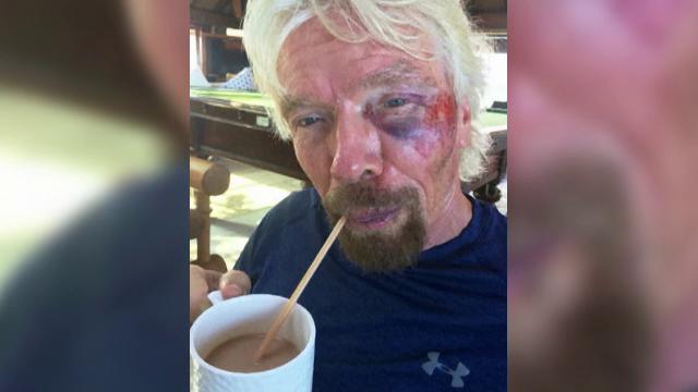 Miliardarul britanic Richard Branson, ranit intr-un accident de bicicleta.